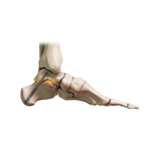 DynaNail Hybrid - In Bone