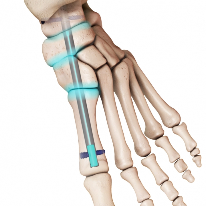 DynaNail Mini® for Medial Column Fusion System - In Bone