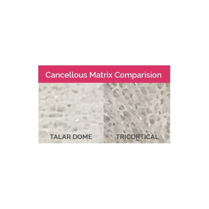 Talar Dome Bone Blocks - Matrix Comparision