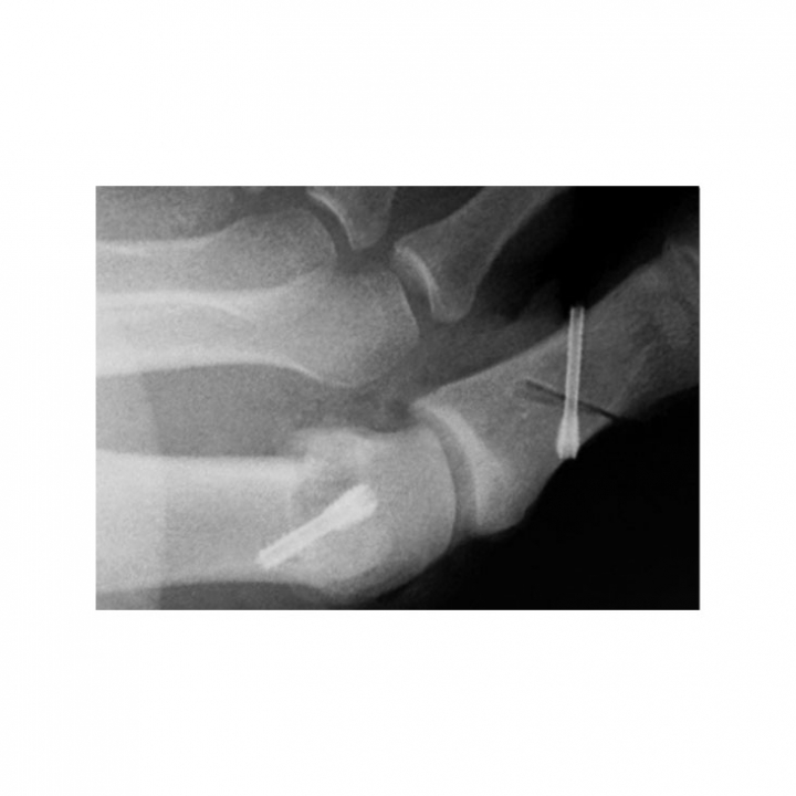 Tiger Headless Cannulated Screw System - x-ray 1