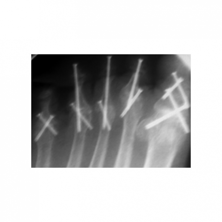 Tiger Cannulated Screw System - x-ray 1
