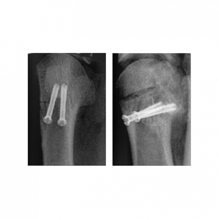Tiger Cannulated Screw System - x-ray 2