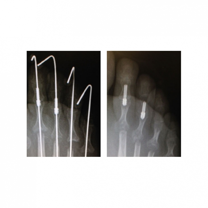 Two-Step Hammer Toe Implant System - x-ray