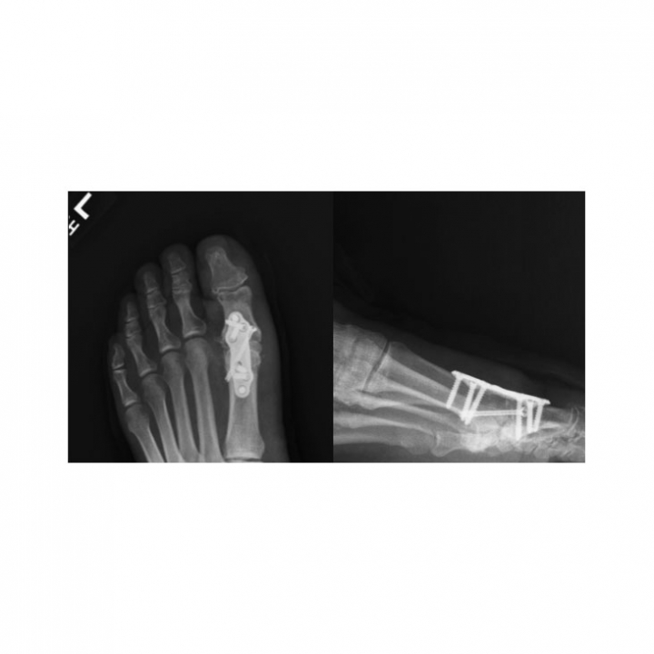 X-ray - Toe - Top